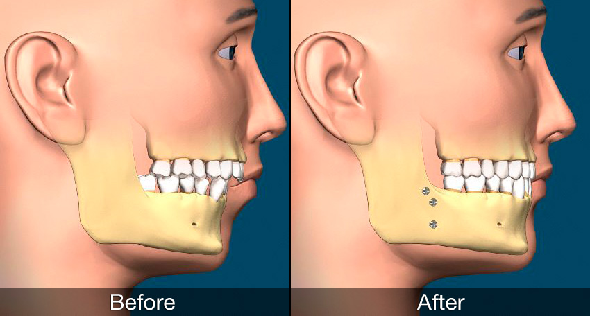 Orthognathic surgery – Universal Superspeciality Dental Hospital